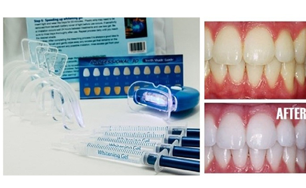 Home Teeth Whitening 3D System